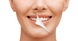 Cosmetics Teeth Whitening